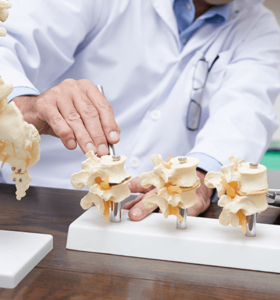 Doctor examining spine models with degenerative disc disease