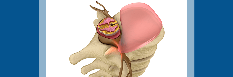 herniated disc image