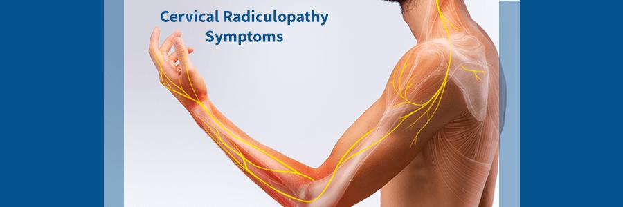 cervical radiculopathy symptoms
