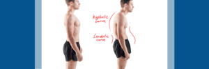kyphosis and lordosis