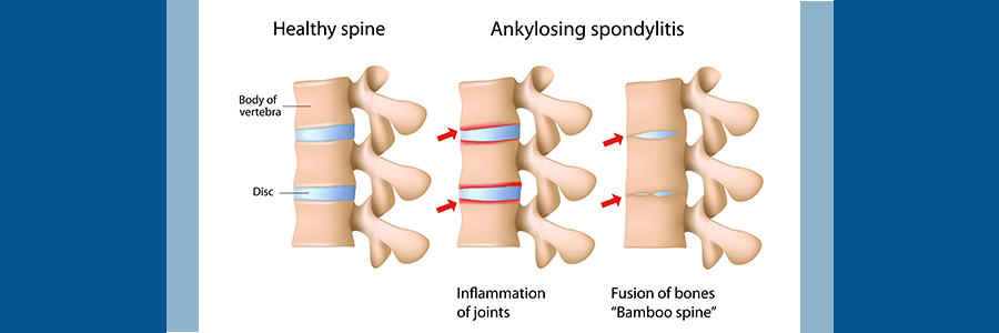 healthy spine vs. spine with ankylosing spondylitis