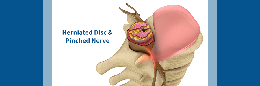 herniated disc in need of xlif