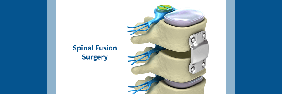 spine with fixation from spinal fusion surgery