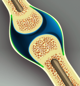osteoporosis and celiac disease